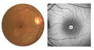 tratamento em Curitiba para buraco de macula na retina