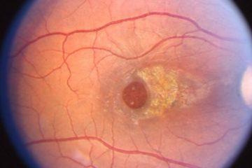 buraco de macula nos olhos