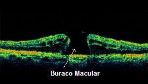 buraco macular tratamento em curitiba