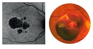 degeneracao macular de retina em curitiba