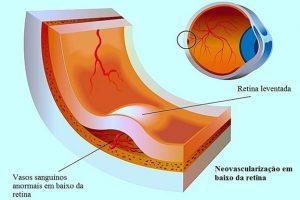 descolamento de retina curitiba