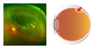 descolamento de retina tratamento curitiba