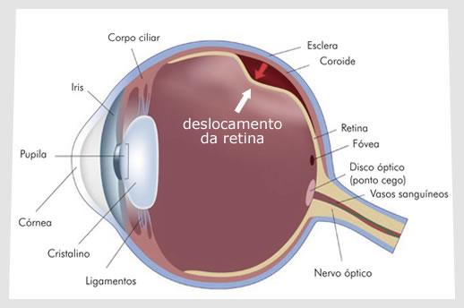 descolamento de retina tratamento em curitiba