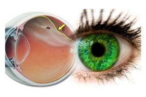 doencas da retina e tratamento