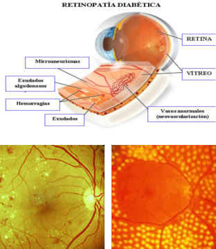 retinopadia diabetica curitiba