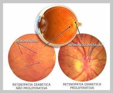 retinopatia diabetica tratamento em curitiba