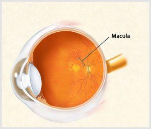 tratamento de degeneração macular em curitba