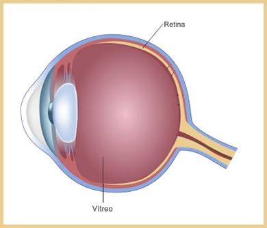 tratamento de doenças de retina em curitiba