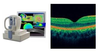 Tomografia de coerencia optica curitiba