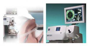 cirurgia de catarata a laser em curitiba
