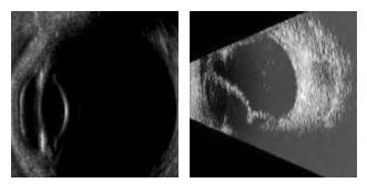 ecografia ocular em curitiba