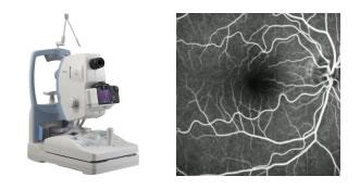 exame de Angiografia Digital de Retina em curitiba