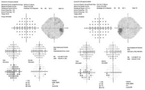 exames campimetria campo visual computadorizado