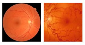 mapeamento de retina em curitiba