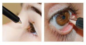 paquimetria da cornea em curitiba