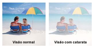 sintomas da catarata leitura e opacificação da visão