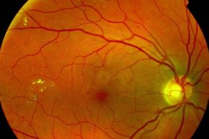 retinopatia diabetica causa cegueira