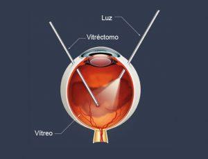 vitrectomia em curitiba