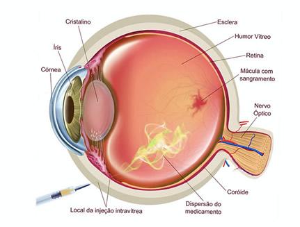 injeção intravitrea para edema macular de retina