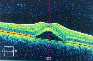 retina curitiba