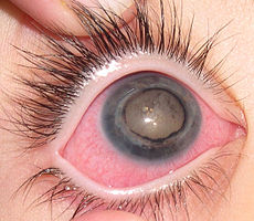 sindrome de coats tratamento curitiba medico especialista