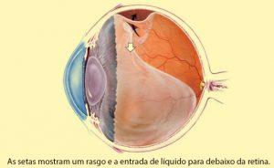 tratamento de descolamento de retina em crianças em curitiba