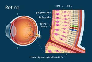 doenças frequentes de retina em curitiba