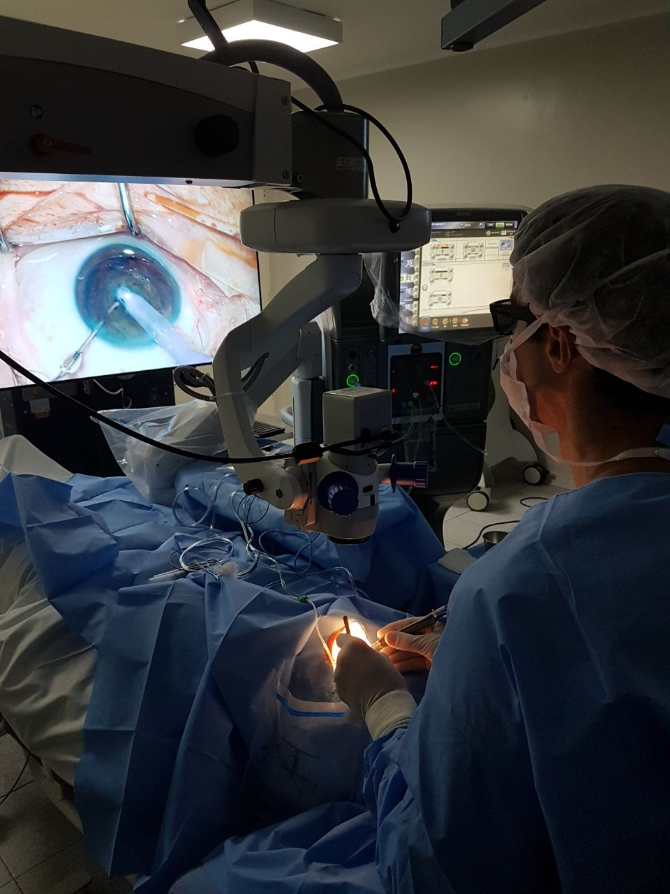 cirurgia de retina e catarata 3d