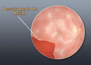 tratamento para descolamento de retina em curitiba