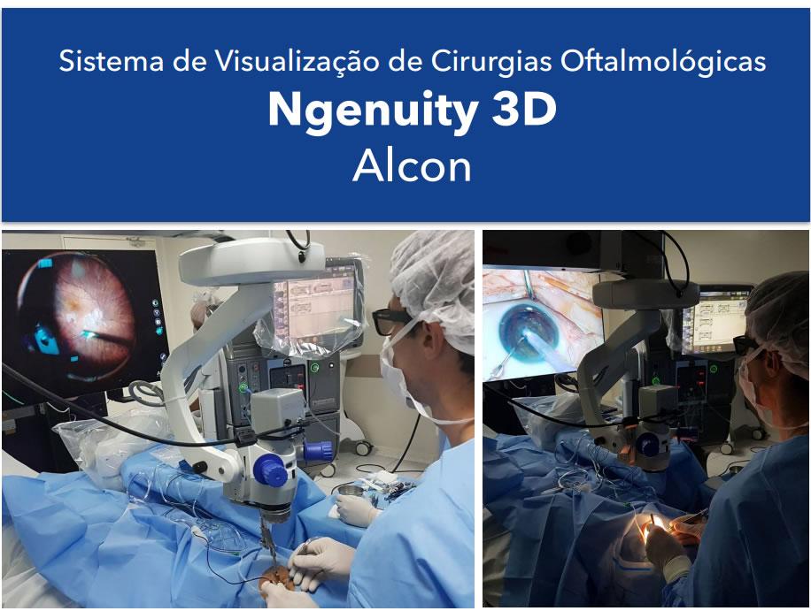 ngenuity 3d para catarata e cirurgia de retina em curitiba