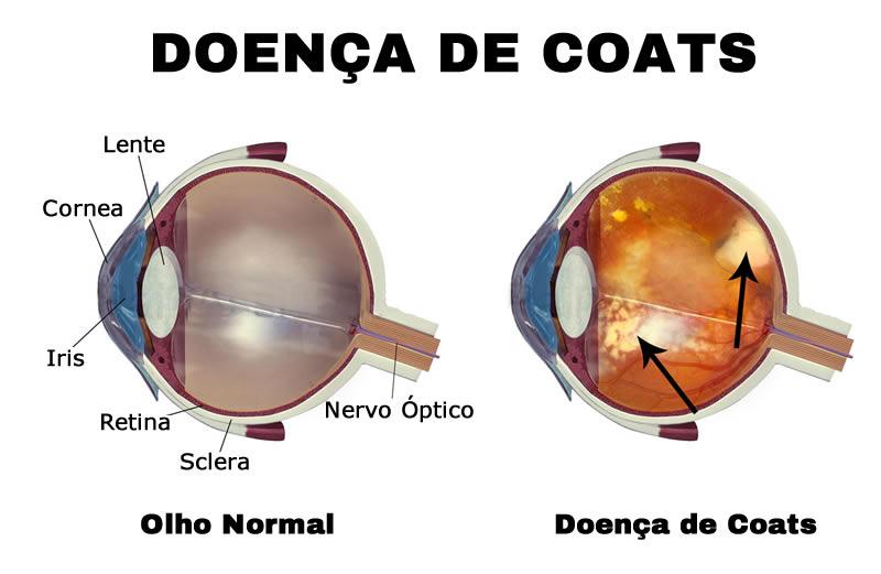 tratamento para doença de Coats