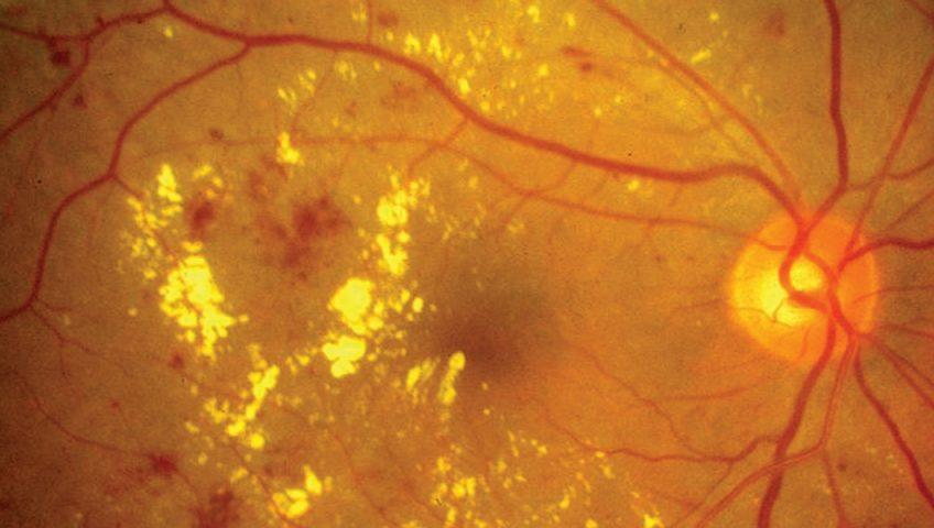 tratamento de retinopatia diabetica especialista em curitiba