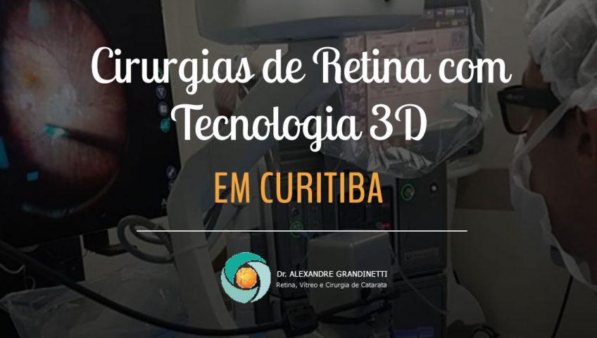 cirurgias de retina 3d em curitiba