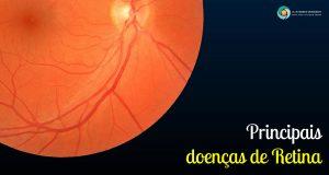 Principais doenças de retina e tratamento em Curitiba