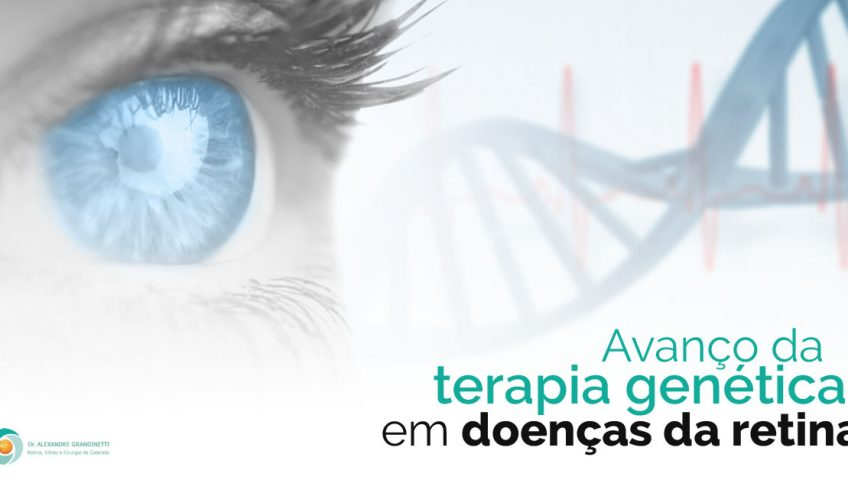 terapia genética para doenças de retina em Curitiba