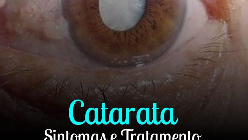 Cirurgia de Catarata em Curitiba