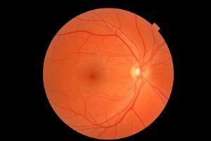 Conheça as principais doenças que podem ser tratadas em Curitiba e o valor para tratamentos de retina