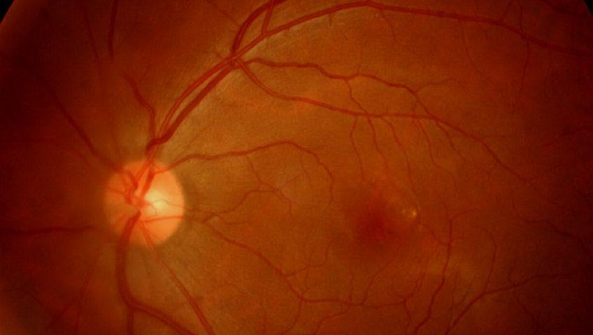 o que e retina