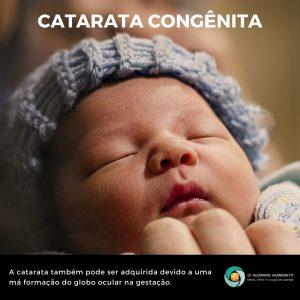 catarata congenita