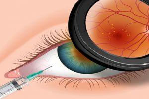 cirurgia de retina em curitiba