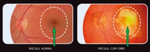 degeneração macular relacionada a idade curitiba