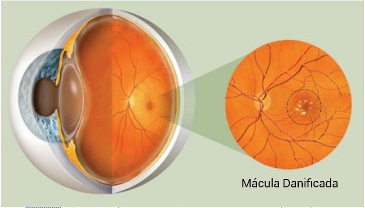 dmri degeneração macular relacionada a idade