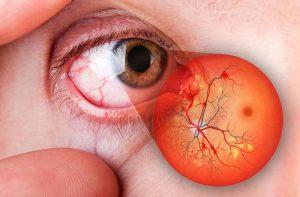 tratamento hemorragia vitrea curitiba