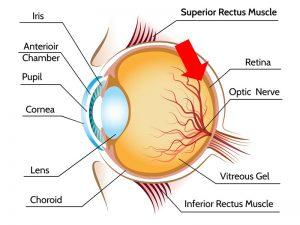degeneração macular de retina dmri tratamento curitiba