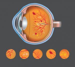 retinopatia diabética curitiba