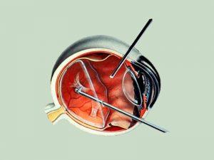 vitrectomia curitiba